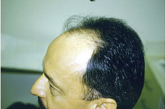 Can You Stop Alopecia? No, but You Can Stop It From Damaging Your Hair