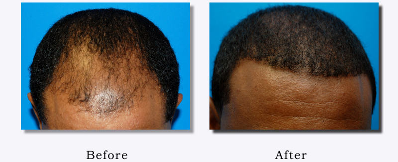 African American Before & After Hair Transplant Photo  Patient 1