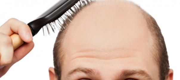 FUT or FUE hair loss help