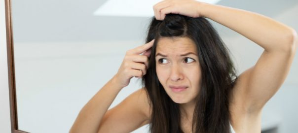 Hair Loss Associated With Dry Scalp and Dandruff