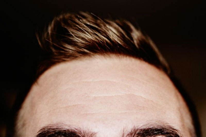 How to Know if You are Destined for Thinning Hair