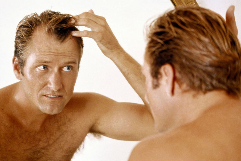 How A Hair Transplant Can Help You Battle A Receding Hairline